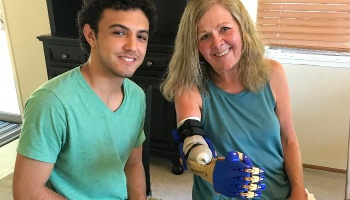 "Free Fundraiser Photo for ""Jaden's 3D Printed Prosthesis"""