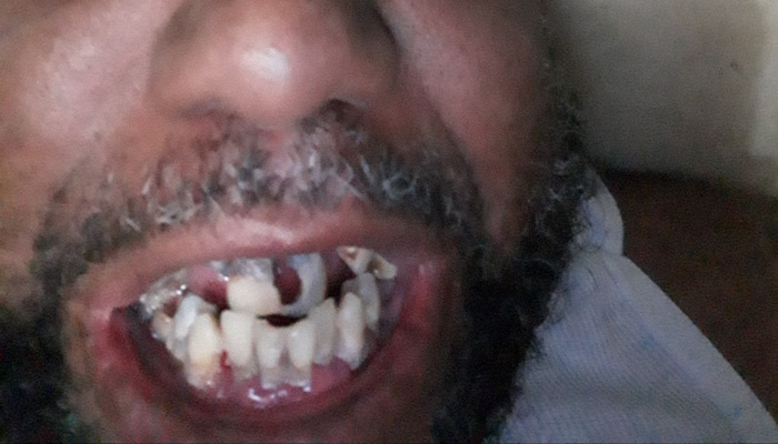 Image for 'Need teeth badly' campaign on Freefunder
